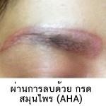 AHA_CASE
