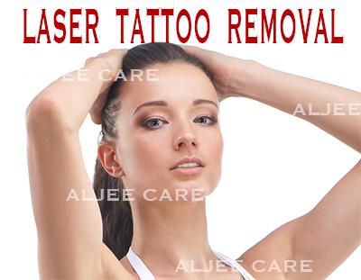 laser_tattoo